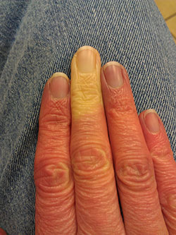 hand with raynauds syndrome